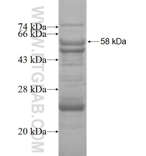 DGUOK fusion protein Ag9361 SDS-PAGE