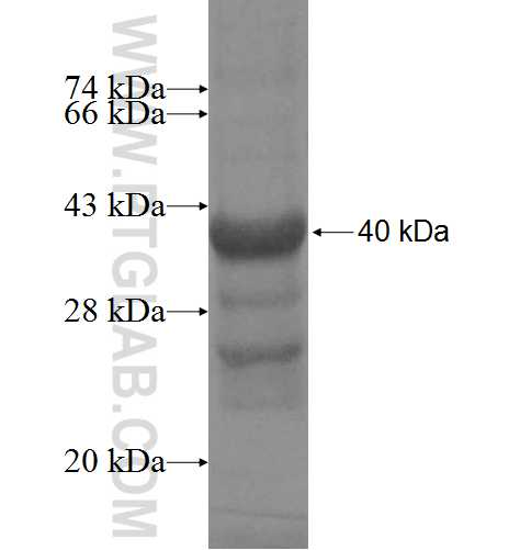 DHX29 fusion protein Ag4938 SDS-PAGE