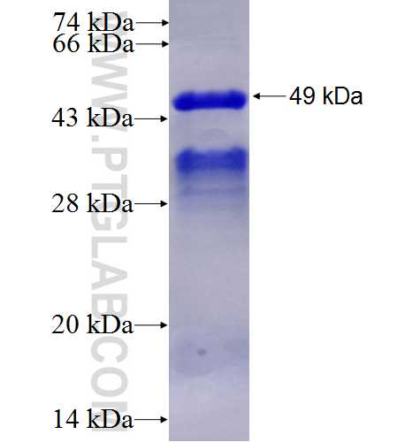 DNAJA2 fusion protein Ag2877 SDS-PAGE