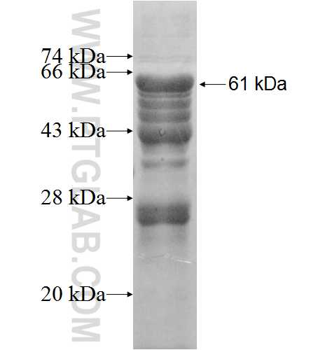 EBP2 fusion protein Ag8760 SDS-PAGE
