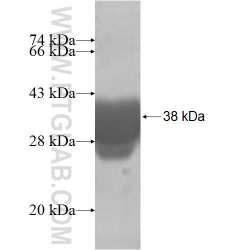 ENY2 fusion protein Ag8462 SDS-PAGE