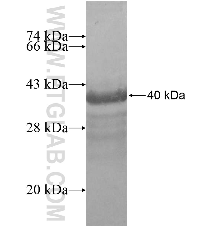 ER81 fusion protein Ag16172 SDS-PAGE