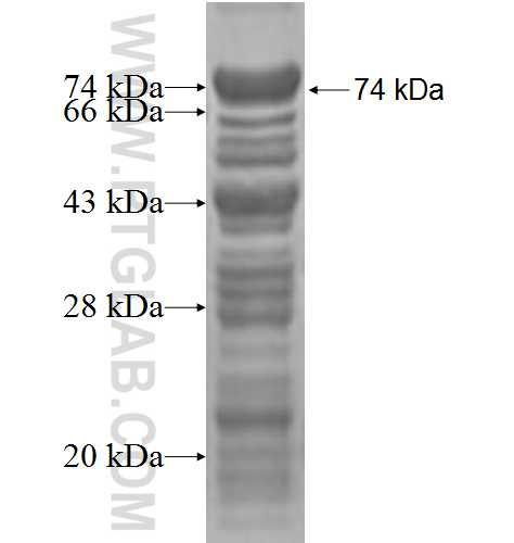 FIP1L1 fusion protein Ag2921 SDS-PAGE