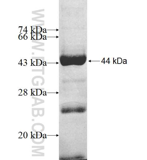 GAL3ST4 fusion protein Ag9063 SDS-PAGE