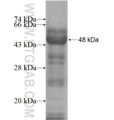 GGCX fusion protein Ag9261 SDS-PAGE