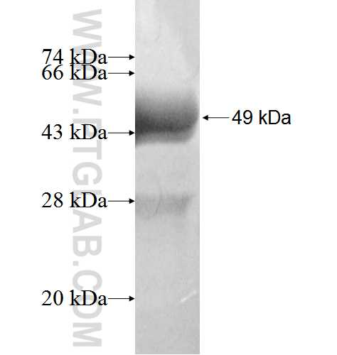 GUCA1A fusion protein Ag4017 SDS-PAGE