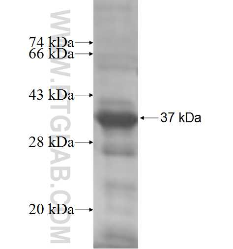 HAGHL fusion protein Ag7725 SDS-PAGE