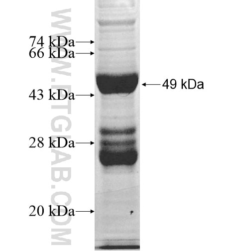 HESX1 fusion protein Ag12348 SDS-PAGE