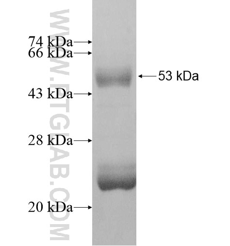 HLA-DQB2 fusion protein Ag11284 SDS-PAGE