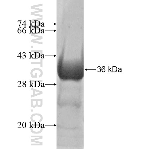 HMGCL fusion protein Ag10454 SDS-PAGE