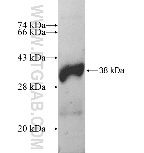 HMGCLL1 fusion protein Ag11541 SDS-PAGE