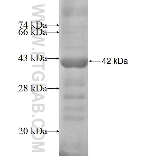 HPS1 fusion protein Ag8111 SDS-PAGE