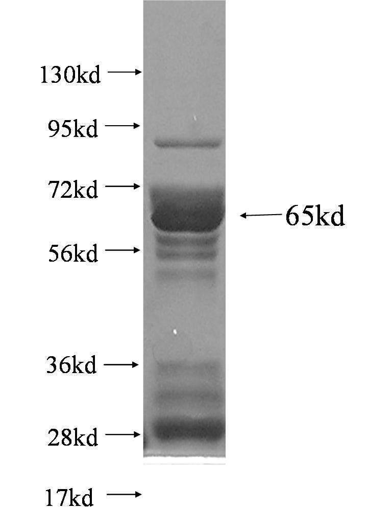 IFI16 fusion protein Ag3102 SDS-PAGE