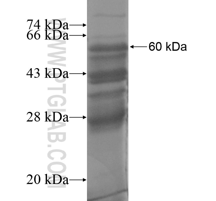 IL7R fusion protein Ag11844 SDS-PAGE
