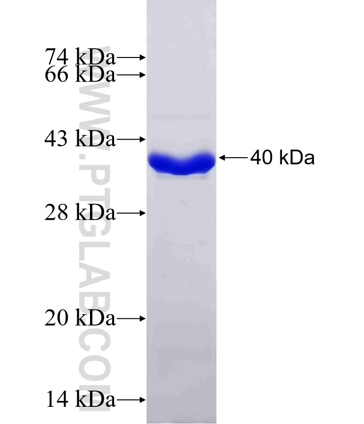 KEAP1 fusion protein Ag16693 SDS-PAGE