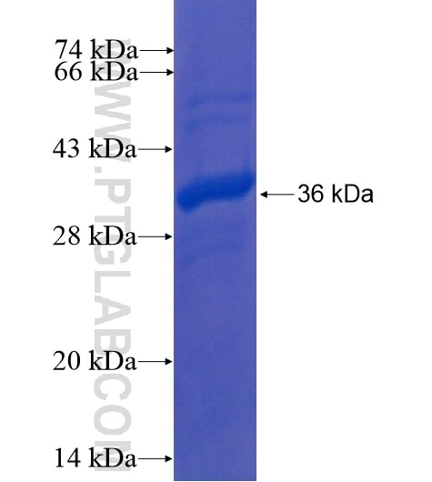 KLHL3 fusion protein Ag10843 SDS-PAGE
