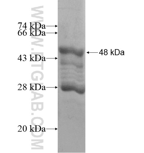 LACRT fusion protein Ag12905 SDS-PAGE