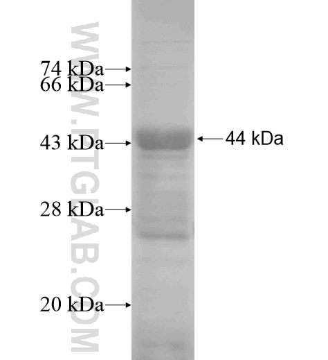 LBP fusion protein Ag13485 SDS-PAGE