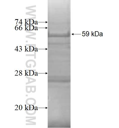 LIPT1 fusion protein Ag8774 SDS-PAGE