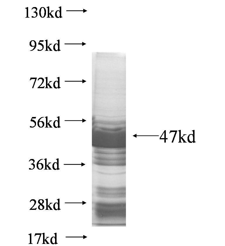 LPCAT2 fusion protein Ag7079 SDS-PAGE