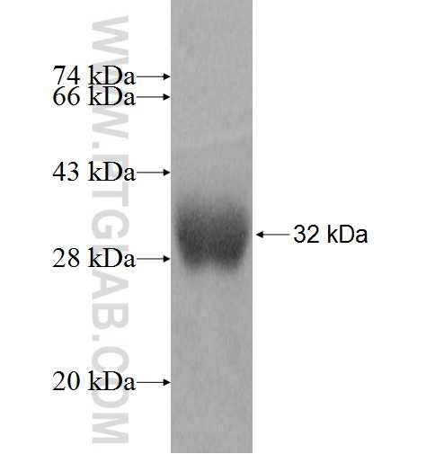 LYPLAL1 fusion protein Ag9581 SDS-PAGE