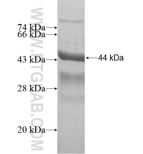 MAGEC3 fusion protein Ag15819 SDS-PAGE