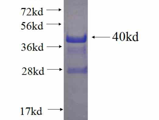 MAN1C1 fusion protein Ag23210 SDS-PAGE