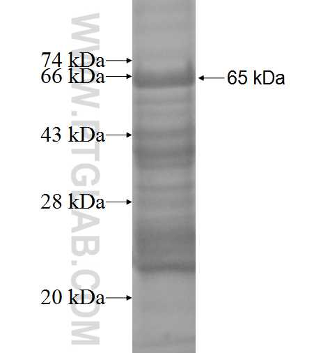 MBIP fusion protein Ag1061 SDS-PAGE