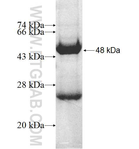MGMT fusion protein Ag9996 SDS-PAGE
