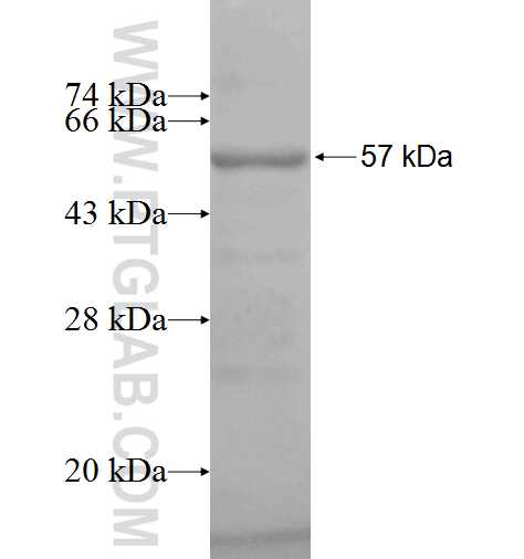AEG-1 fusion protein Ag5033 SDS-PAGE