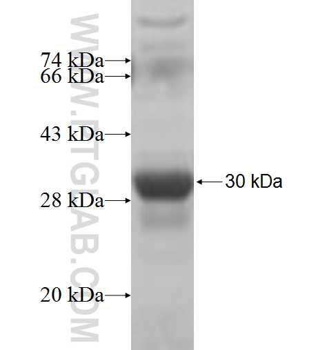MTMR6 fusion protein Ag5328 SDS-PAGE