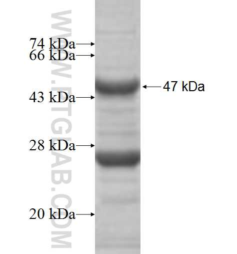 NDUFB10 fusion protein Ag7922 SDS-PAGE