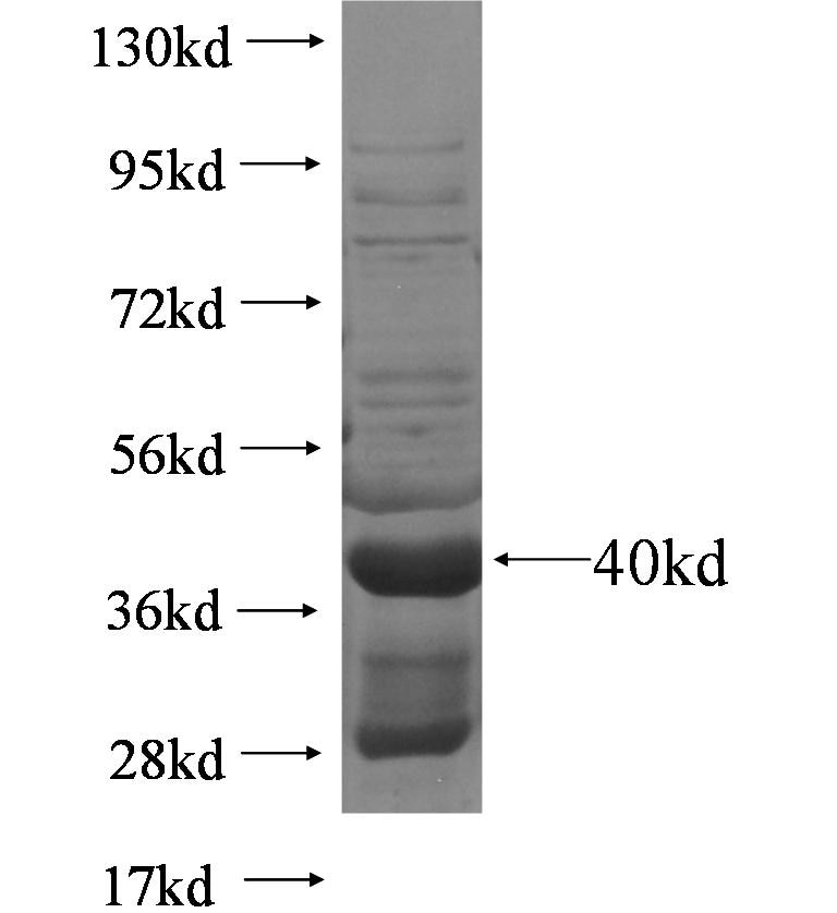 NDUFS6 fusion protein Ag5762 SDS-PAGE