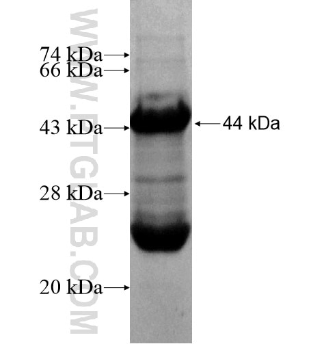 NEFH fusion protein Ag15249 SDS-PAGE