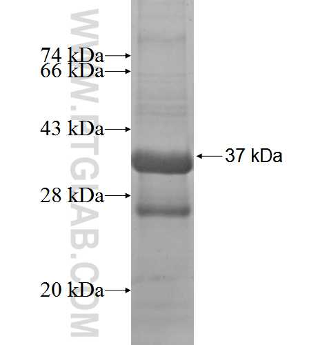 NKG7 fusion protein Ag2117 SDS-PAGE