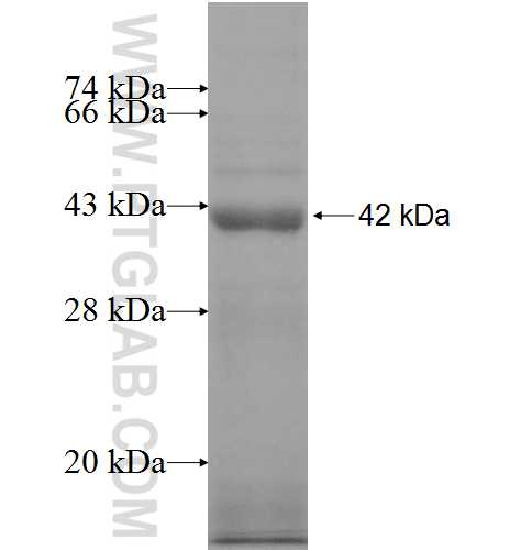 NMT2 fusion protein Ag8425 SDS-PAGE