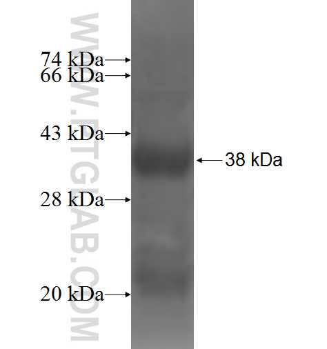 P2RX4 fusion protein Ag4635 SDS-PAGE