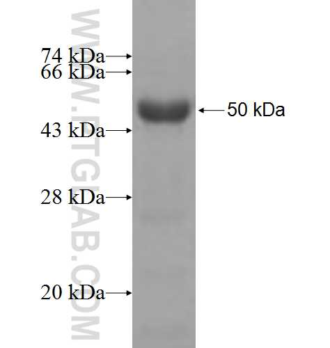 PCYT2 fusion protein Ag6604 SDS-PAGE