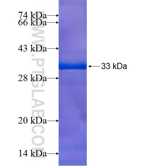 PDK2 fusion protein Ag8206 SDS-PAGE