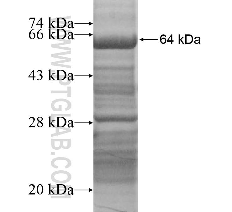 PEX6 fusion protein Ag15201 SDS-PAGE