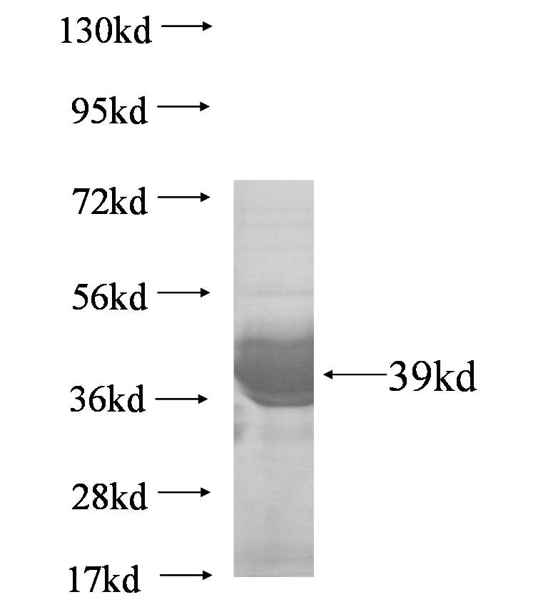 PHKG2 fusion protein Ag7139 SDS-PAGE