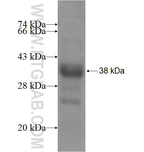 PIAS4 fusion protein Ag5498 SDS-PAGE