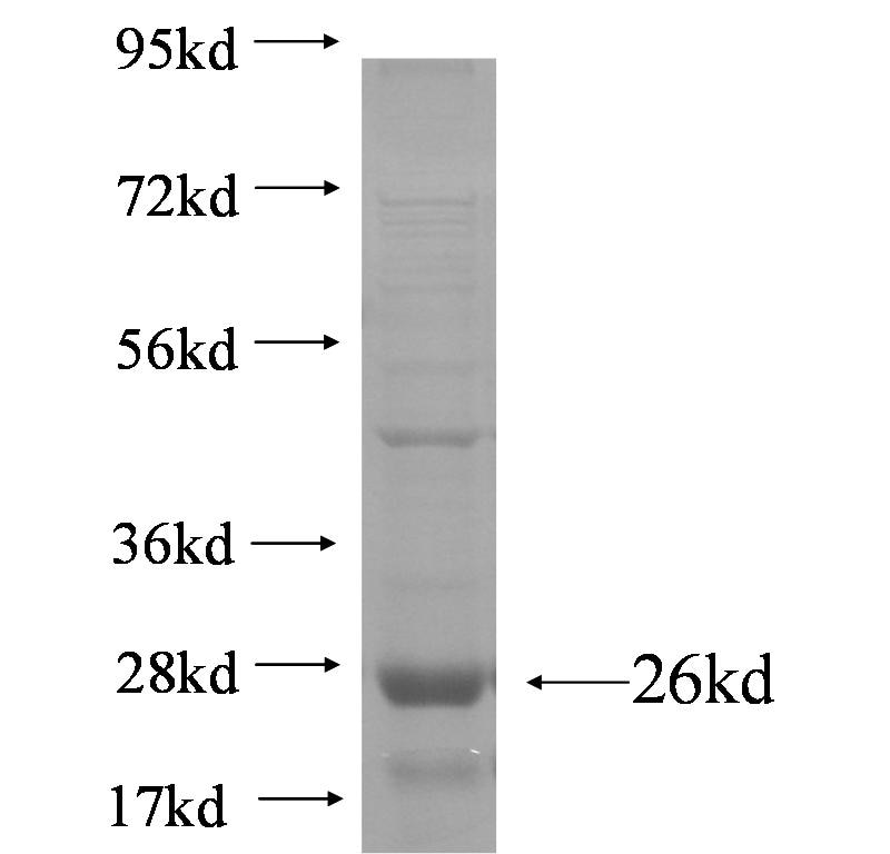 PKD2L2 fusion protein Ag5011 SDS-PAGE