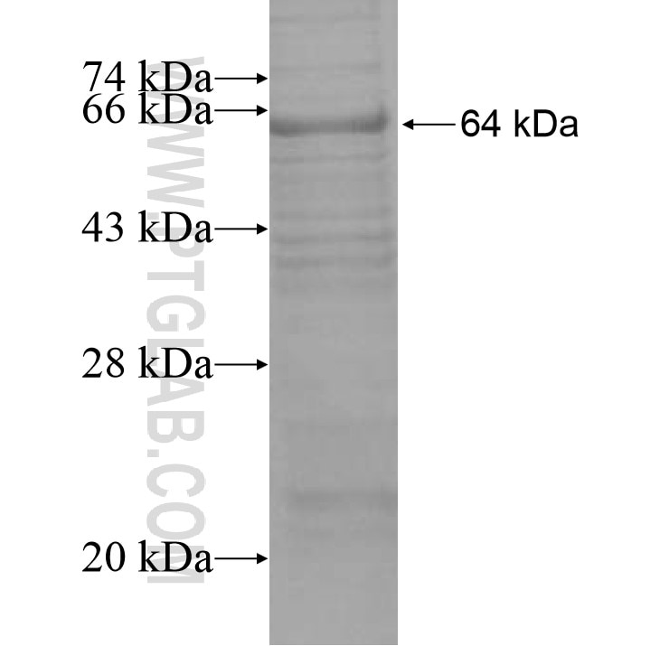 PML fusion protein Ag15377 SDS-PAGE