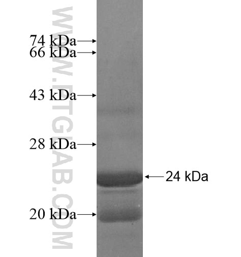 PPP1R11 fusion protein Ag15863 SDS-PAGE