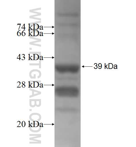 PPP1R3B fusion protein Ag5734 SDS-PAGE