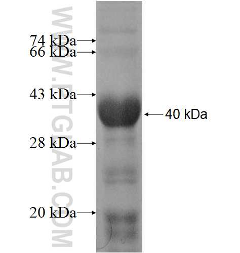 PPP1R3C fusion protein Ag8985 SDS-PAGE