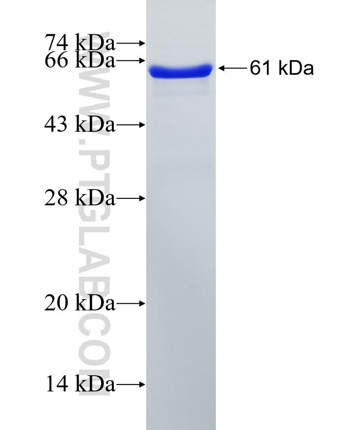 PRMT6 fusion protein Ag7592 SDS-PAGE