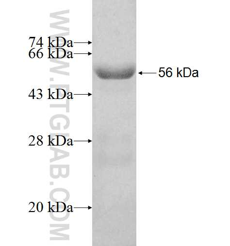 RABIN8 fusion protein Ag2974 SDS-PAGE