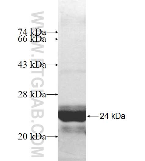 RPP21 fusion protein Ag9627 SDS-PAGE